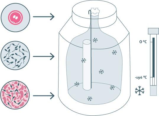 Abbildung einer Kryokonservierung von Keimzellen für eine spätere Fertilitätsbehandlung